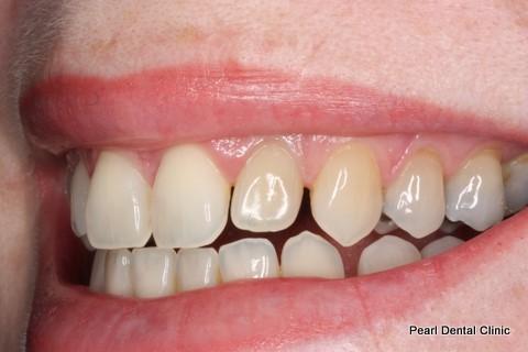 Teeth Gap Before After - Left top/bottom teeth